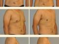 Gynecomastia - Patient 09