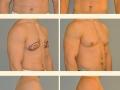 Gynecomastia - Patient 13