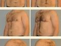 Gynecomastia - Patient 02