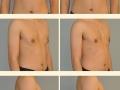 Gynecomastia - Patient 14