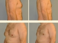 Gynecomastia - Patient 11