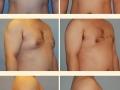 Gynecomastia - Patient 10