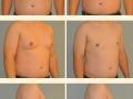 Gynecomastia - Patient 04