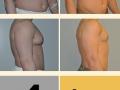 Gynecomastia - Patient 15