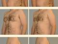 Gynecomastia - Patient 08