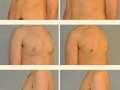 Gynecomastia - Patient 01