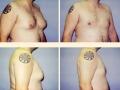 Gynecomastia - Patient 19