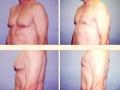 Gynecomastia - Patient 17