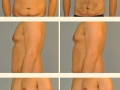 Gynecomastia - Patient 03