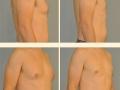 Gynecomastia - Patient 16