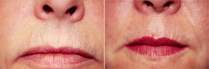 Microdermabrasion Patient, Before and After Photo