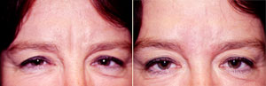 Restylane Patient, Before and After Photo