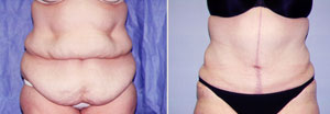 Abdominoplasty Patient, Before and After Photo