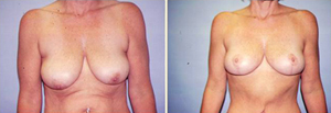 Breast Lift Patient, Before and After Photo