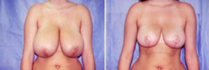 Breast Reduction Patient, Before and After Photo