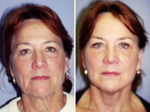 Cheek lift patient, Before and After