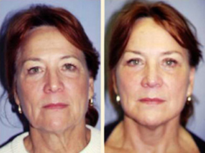 Face lift Patient, Before and After Photo