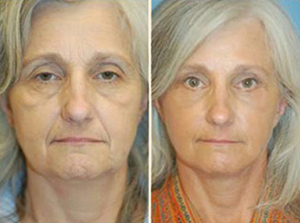 Facelift Patient, Before and After Photo