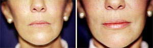 Lip Augmentation Patient, Before and After Photo