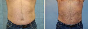 Male Liposuction Patient, Before and After Photo