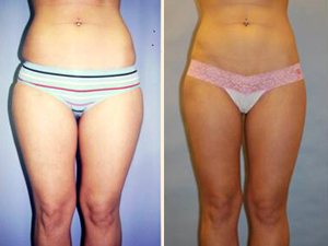 Liposuction Patient, Before and After Photo