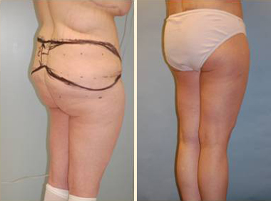 Lower Body Lift Patient, Before and After Photo