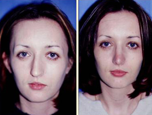 Nose Surgery Patient, Before and After Photo