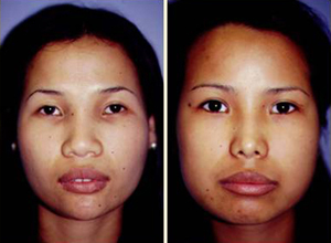 Rhinoplasty Patient, Before and After Photo