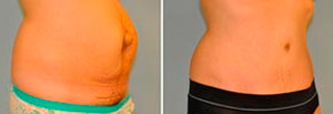 Abdominoplasty Before and After Patient Photo
