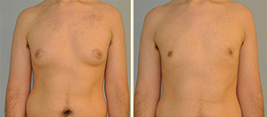 Gynecomastia Patient, Before and After Photo