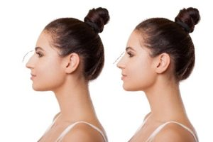 Rhinoplasty nose surgery in Seattle